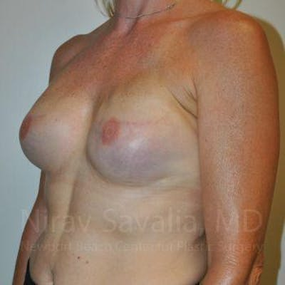 Mastectomy Reconstruction Gallery - Patient 1655474 - Image 6