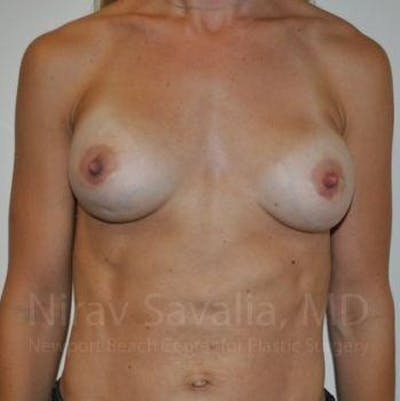Breast Implant Revision Gallery - Patient 1655478 - Image 1