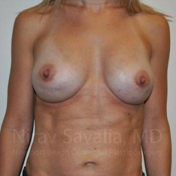 Breast Implant Revision Gallery - Patient 1655478 - Image 2