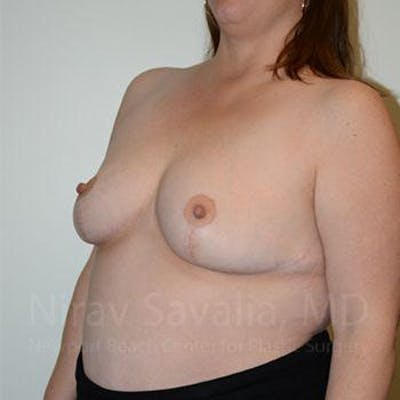 Breast Reduction Gallery - Patient 1655476 - Image 10