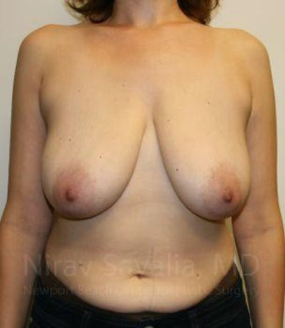 Breast Lift without Implants Gallery - Patient 1655480 - Image 1