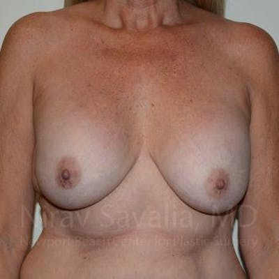 Breast Lift with Implants Gallery - Patient 1655483 - Image 1