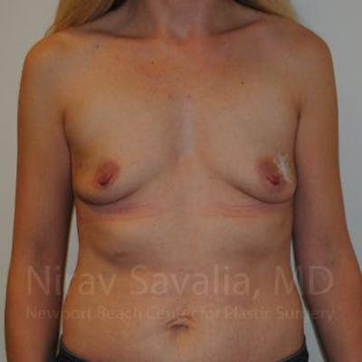 Mastectomy Reconstruction Gallery - Patient 1655479 - Image 1