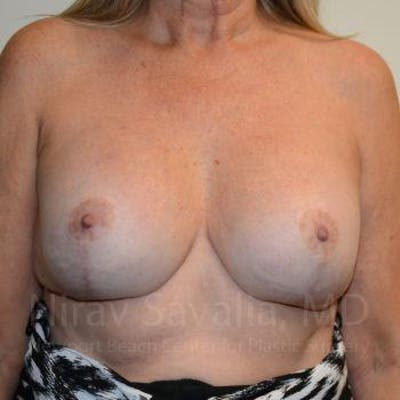 Breast Lift with Implants Gallery - Patient 1655483 - Image 2