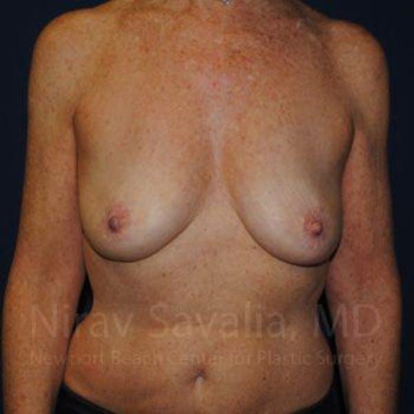 Oncoplastic Reconstruction Gallery - Patient 1655481 - Image 1