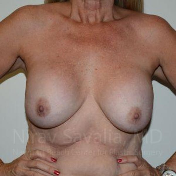 Breast Lift with Implants Gallery - Patient 1655483 - Image 3