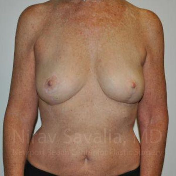 Oncoplastic Reconstruction Gallery - Patient 1655481 - Image 2