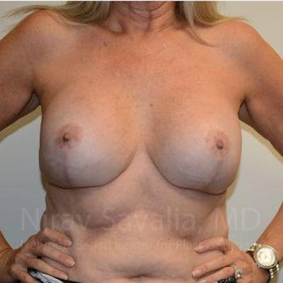 Breast Lift with Implants Gallery - Patient 1655483 - Image 4