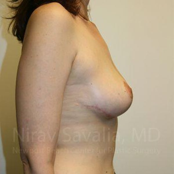 Breast Lift without Implants Gallery - Patient 1655480 - Image 6