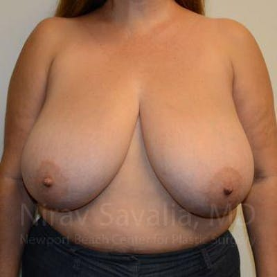 Breast Reduction Gallery - Patient 1655482 - Image 1