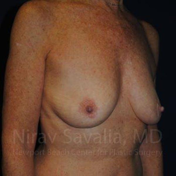Oncoplastic Reconstruction Gallery - Patient 1655481 - Image 3