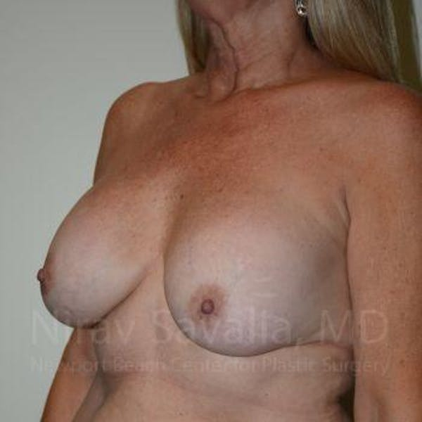 Breast Lift with Implants Gallery - Patient 1655483 - Image 5
