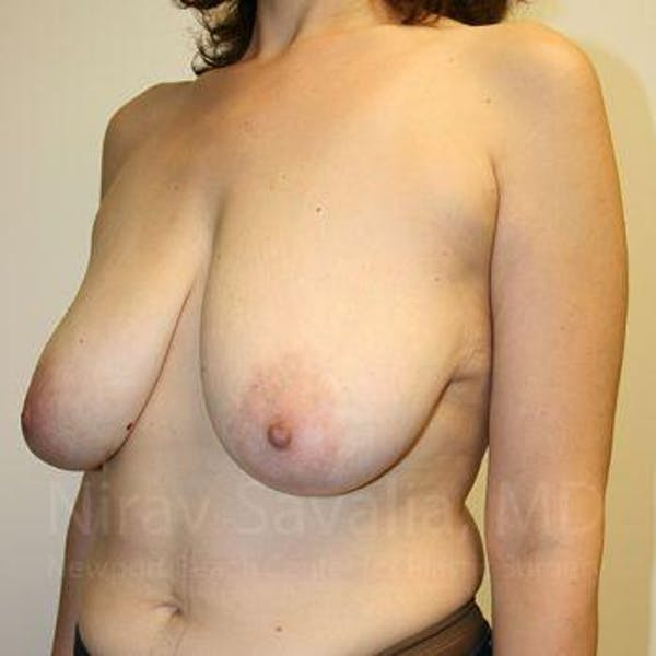 Breast Lift without Implants Gallery - Patient 1655480 - Image 7