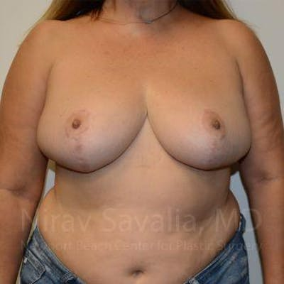 Breast Reduction Gallery - Patient 1655482 - Image 2