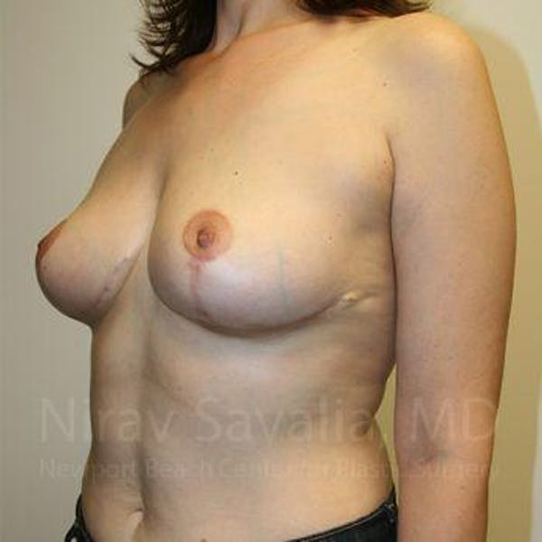 Breast Lift without Implants Gallery - Patient 1655480 - Image 8