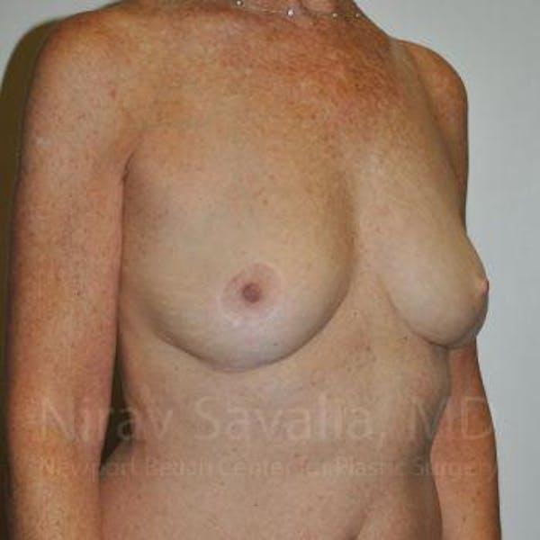 Oncoplastic Reconstruction Gallery - Patient 1655481 - Image 4
