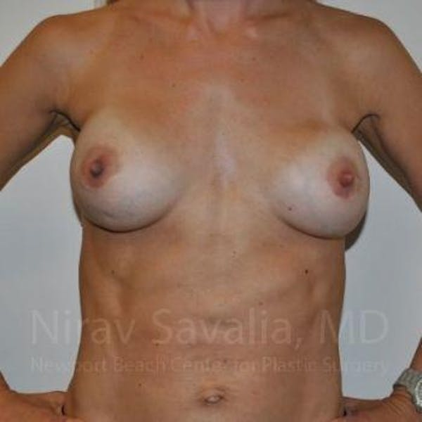 Breast Implant Revision Gallery - Patient 1655478 - Image 11