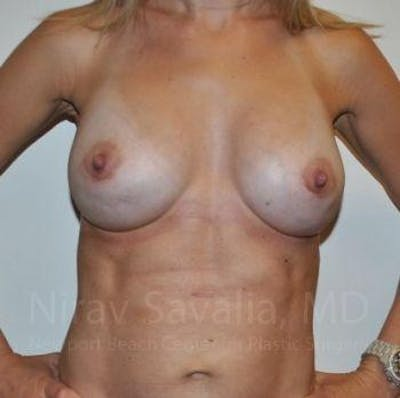 Breast Implant Revision Gallery - Patient 1655478 - Image 12