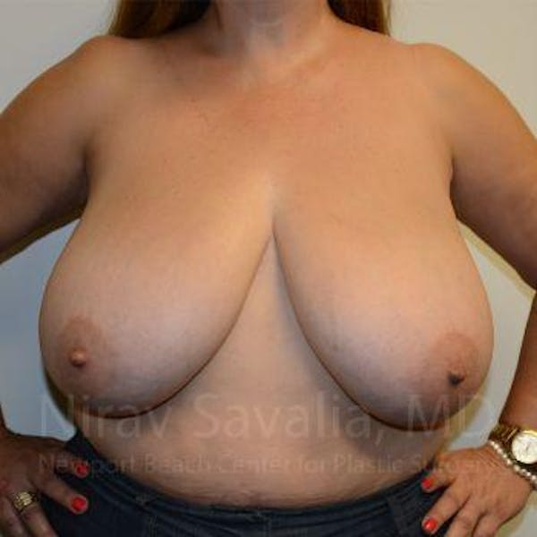 Breast Reduction Gallery - Patient 1655482 - Image 3