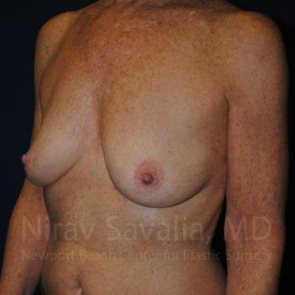 Oncoplastic Reconstruction Gallery - Patient 1655481 - Image 5