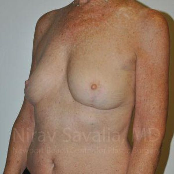 Oncoplastic Reconstruction Gallery - Patient 1655481 - Image 6