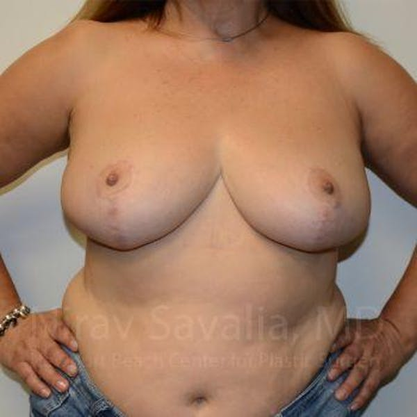 Breast Reduction Gallery - Patient 1655482 - Image 4