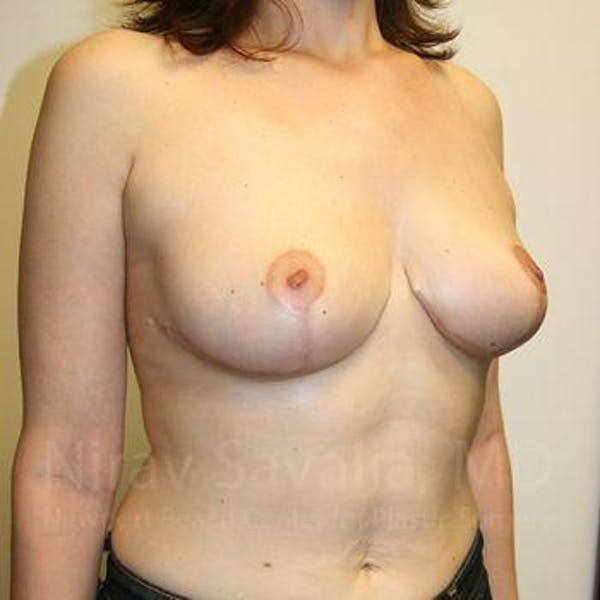 Breast Lift without Implants Gallery - Patient 1655480 - Image 10