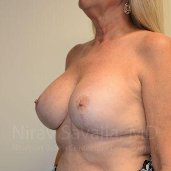 Breast Lift with Implants Gallery - Patient 1655483 - Image 6
