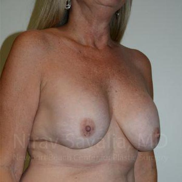 Breast Lift with Implants Gallery - Patient 1655483 - Image 7