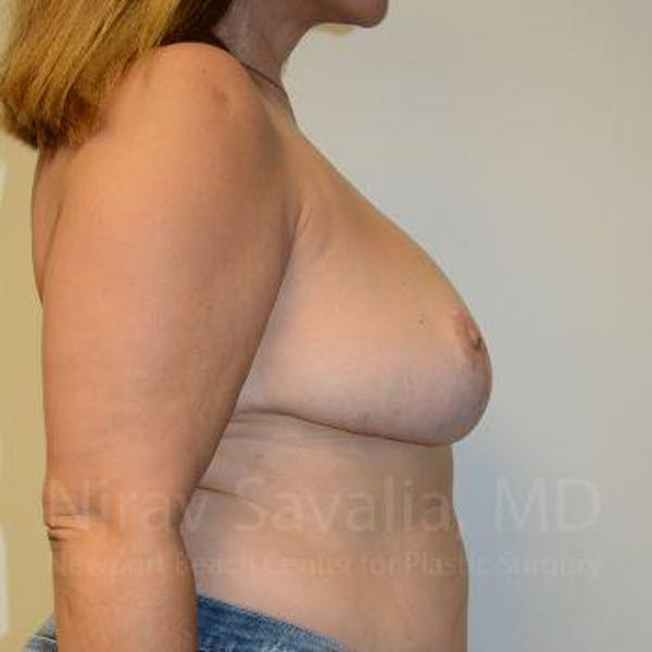 Breast Reduction Gallery - Patient 1655482 - Image 8