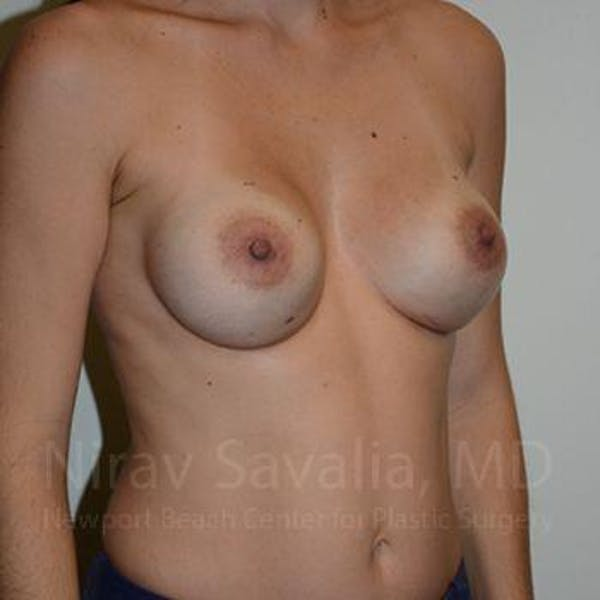 Breast Augmentation Gallery - Patient 1655484 - Image 6