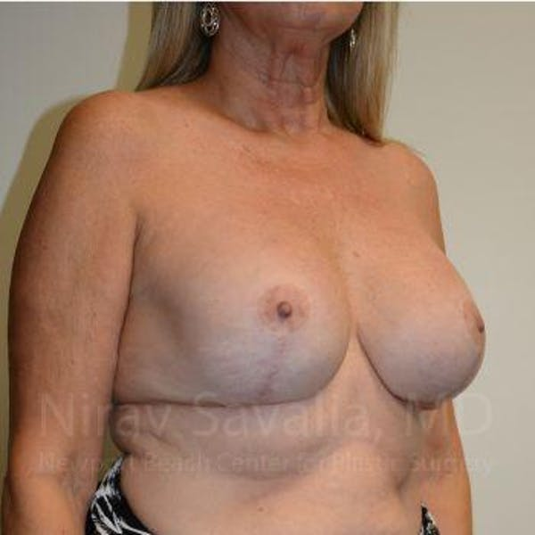 Breast Lift with Implants Gallery - Patient 1655483 - Image 8