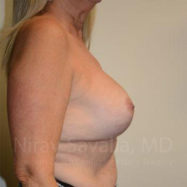Breast Lift with Implants Gallery - Patient 1655483 - Image 10