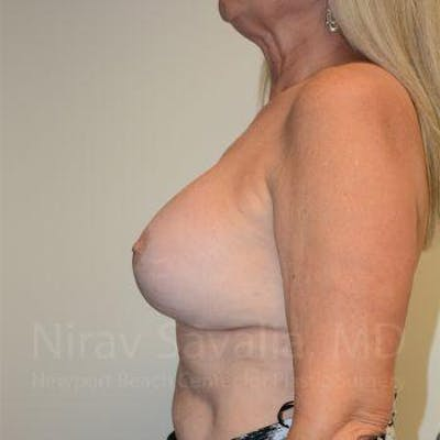 Breast Lift with Implants Gallery - Patient 1655483 - Image 12