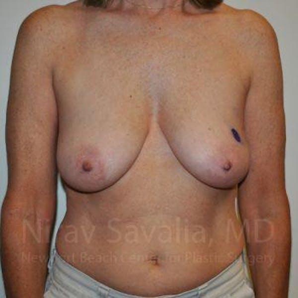 Oncoplastic Reconstruction Gallery - Patient 1655487 - Image 1
