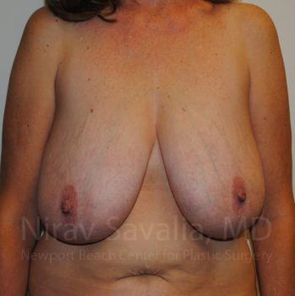 Breast Lift without Implants Gallery - Patient 1655489 - Image 3