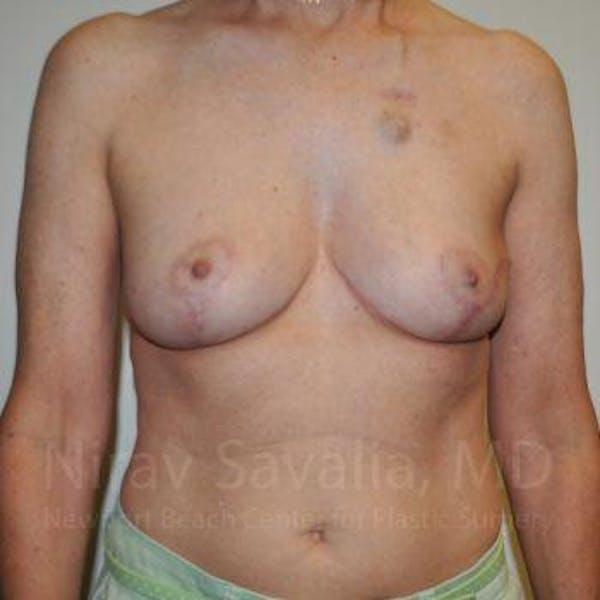 Oncoplastic Reconstruction Gallery - Patient 1655487 - Image 2