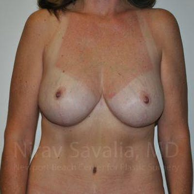 Breast Lift without Implants Gallery - Patient 1655489 - Image 4