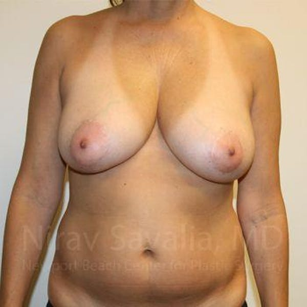 Breast Reduction Gallery - Patient 1655488 - Image 1
