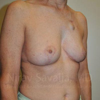 Oncoplastic Reconstruction Gallery - Patient 1655487 - Image 4