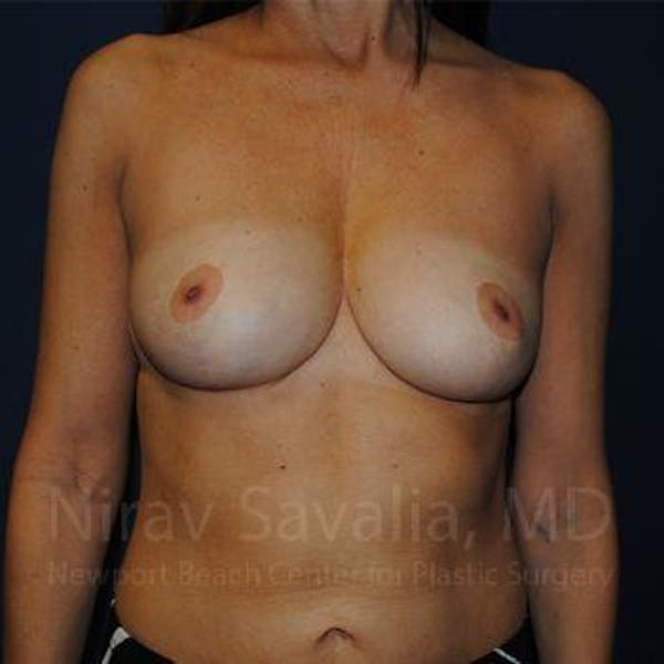 Breast Reduction Gallery - Patient 1655488 - Image 2