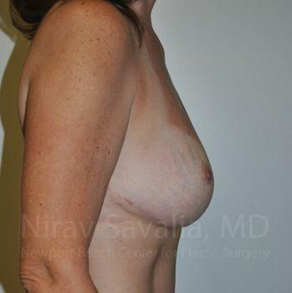 Breast Lift without Implants Gallery - Patient 1655489 - Image 6
