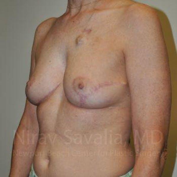 Oncoplastic Reconstruction Gallery - Patient 1655487 - Image 6
