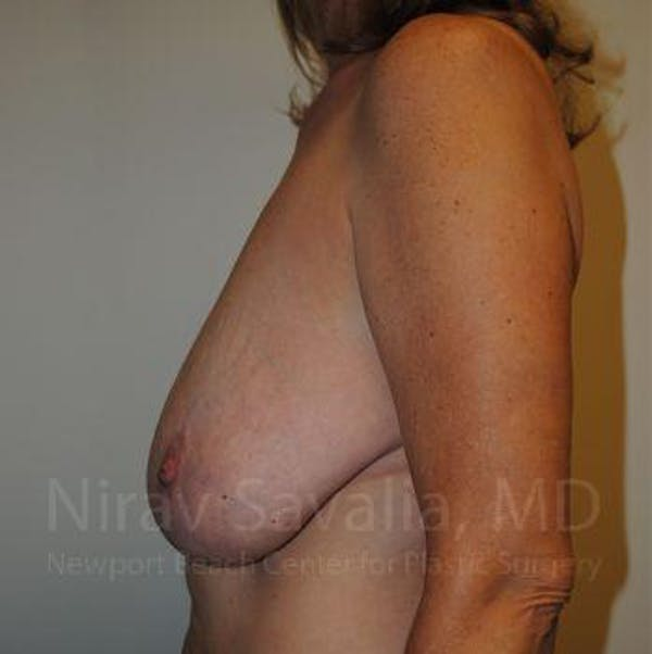 Breast Lift without Implants Gallery - Patient 1655489 - Image 7