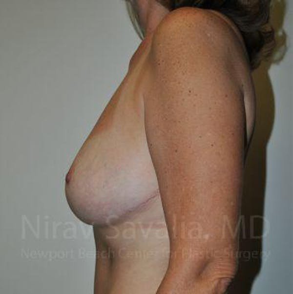 Breast Lift without Implants Gallery - Patient 1655489 - Image 8