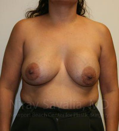 Breast Lift with Implants Gallery - Patient 1655490 - Image 1