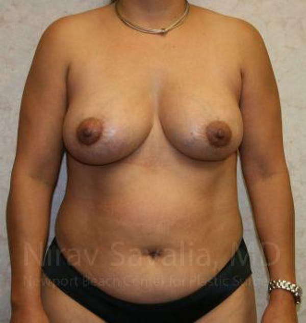 Breast Lift with Implants Gallery - Patient 1655490 - Image 2