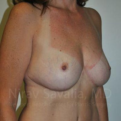 Breast Lift without Implants Gallery - Patient 1655489 - Image 10