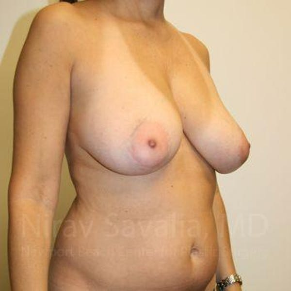 Breast Reduction Gallery - Patient 1655488 - Image 7