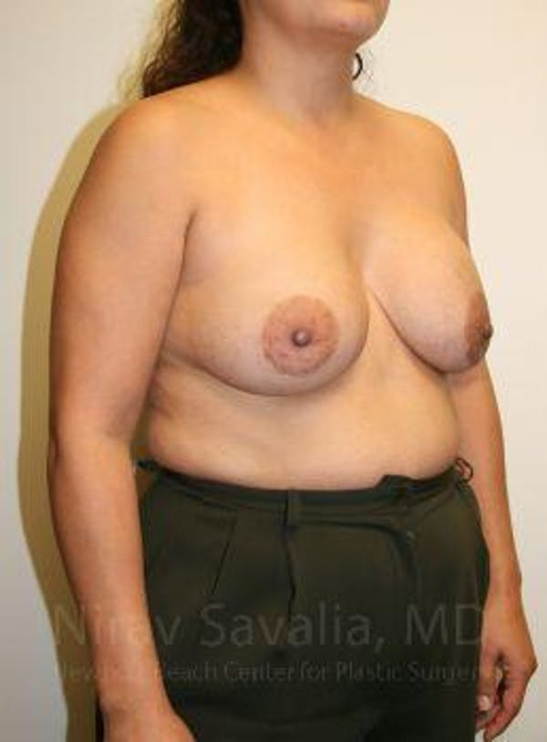 Breast Lift with Implants Gallery - Patient 1655490 - Image 3